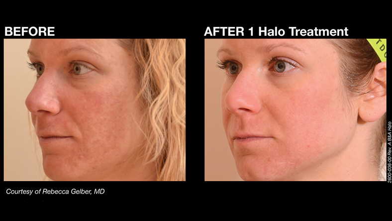 What Makes Halo Hybrid Fractional Laser Different From Other