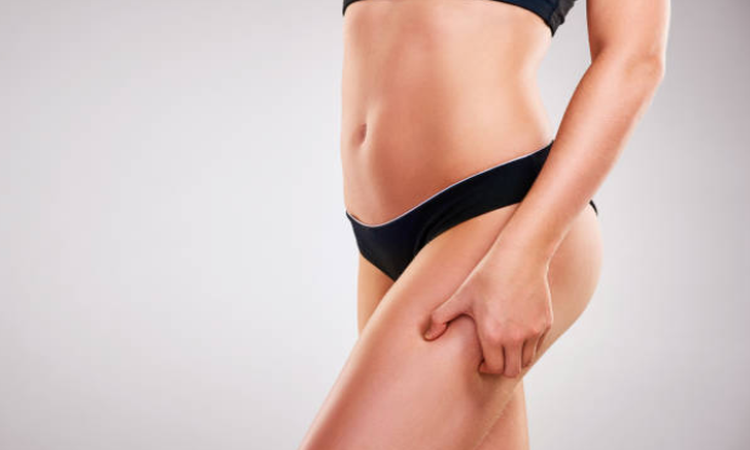 Liposuction Kalamazoo
