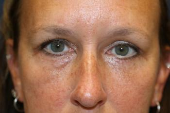 Eyelid Surgery_after