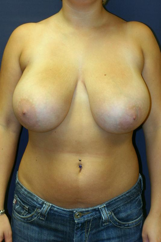 Breast Reduction_before